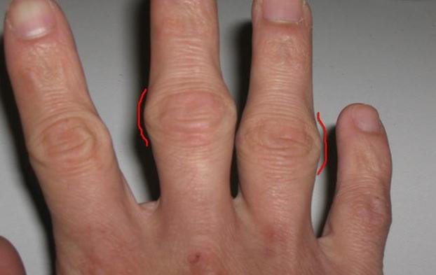 Наросты на суставах пальцев рук и кистях