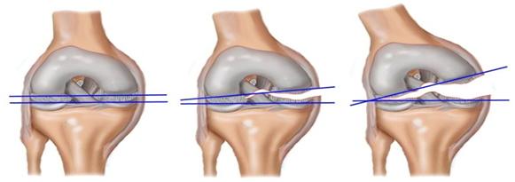 Виды разрыва коленного мениска