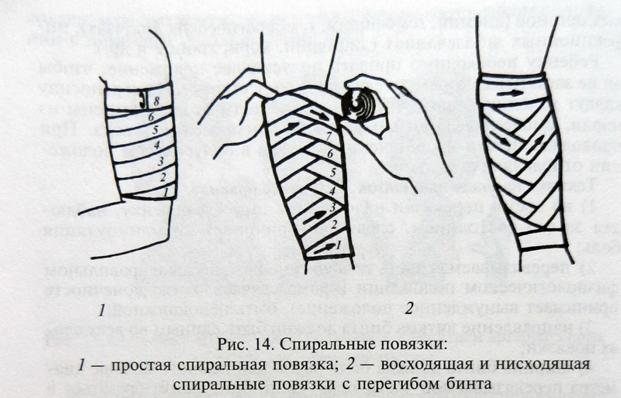 Наложение спиральной повязки на конечность