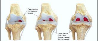 Степени гонартроза коленного сустава