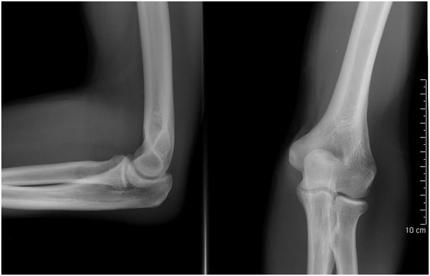 Рентген здорового локтя