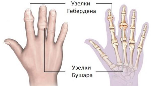 гипертрофия межпозвонковых суставов