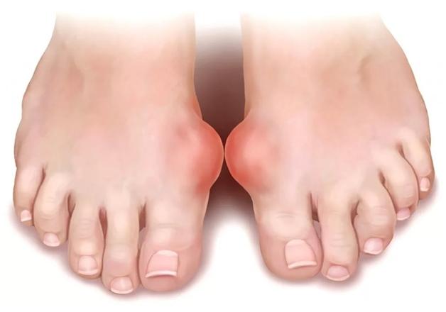 Воспаление суставов на больших пальцах ног