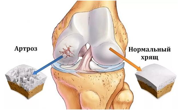 что такое артроз колена