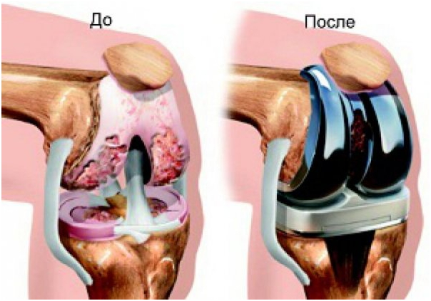 Изображение - Артроз коленного сустава описание endoprotezirovanie-kolena