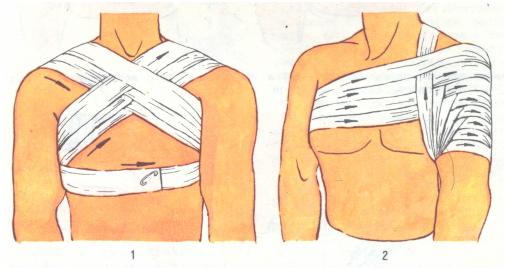 Как правильно зафиксировать плечевой сустав эластичным бинтом