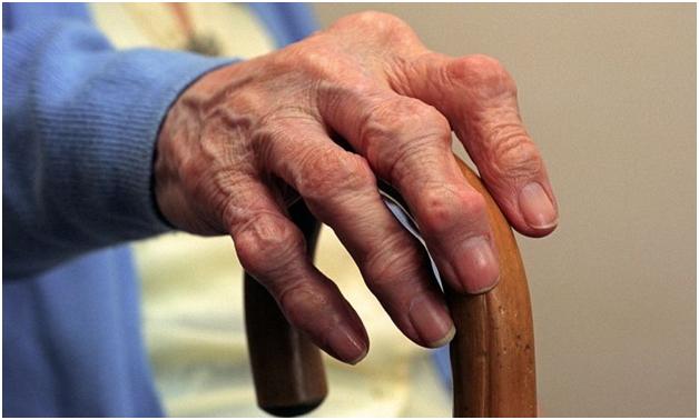 лечение артрита, артроза в Израиле эффективно