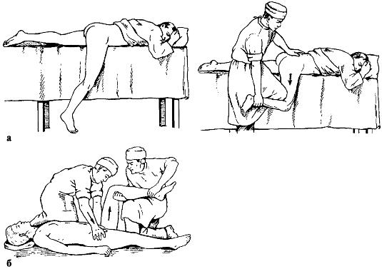 Каким бывает вывих тазобедренного сустава