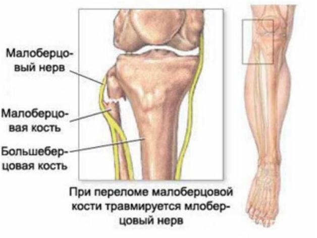 нервы нижней конечности