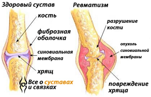 осложнения на суставы при хроническом тонзиллите