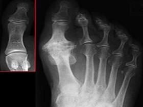 Рентген остеоартроза стопы