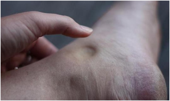 Отек ноги при артрите коленного сустава: как передается, питание, рецепты народной медицины, что это такое