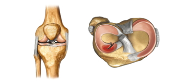 Контузия суставного хряща лечебная блокада коленного сустава