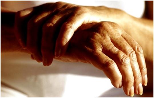 Мелкие суставы конечностей отекают при ревматоидном артрите