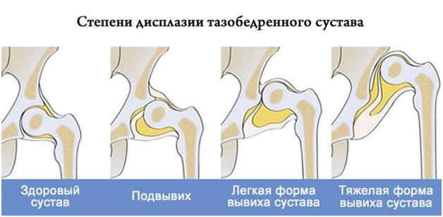 Изображение - Подвывих тазобедренного сустава симптомы stepeni-displazii