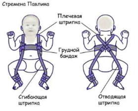 Изображение - Гипоплазия тазобедренного сустава у детей stremena-pavlika