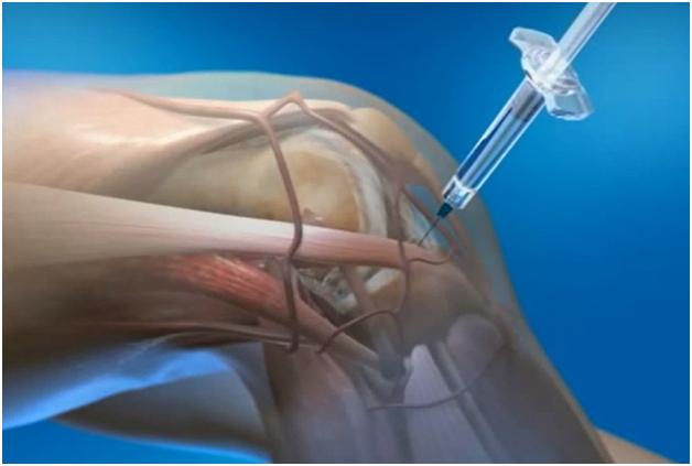 Изображение - Артроз коленного сустава описание ukoly-pri-artroze-kolena