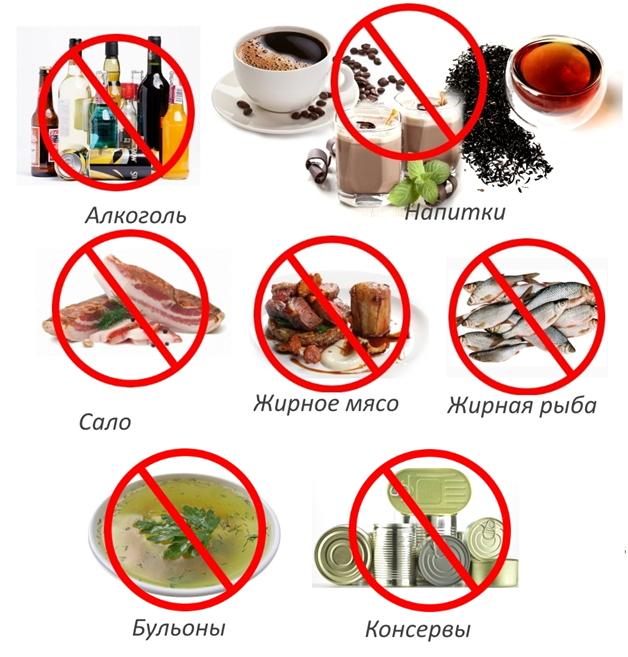 Вредные продукты при плантарном фасциите