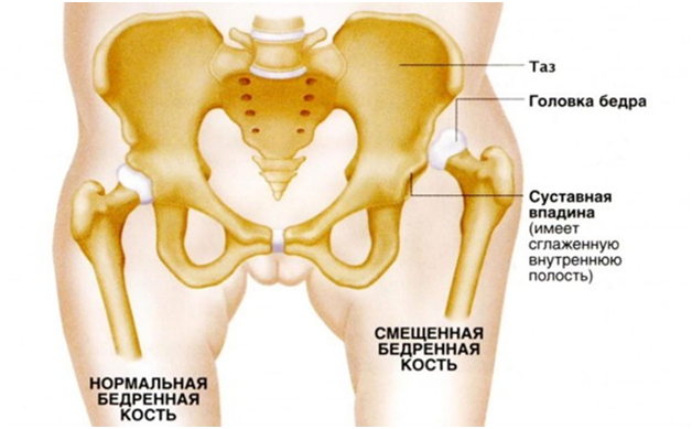 Признаки подвывиха тазобедренного сустава у взрослых при ходьбе хруснул сустав