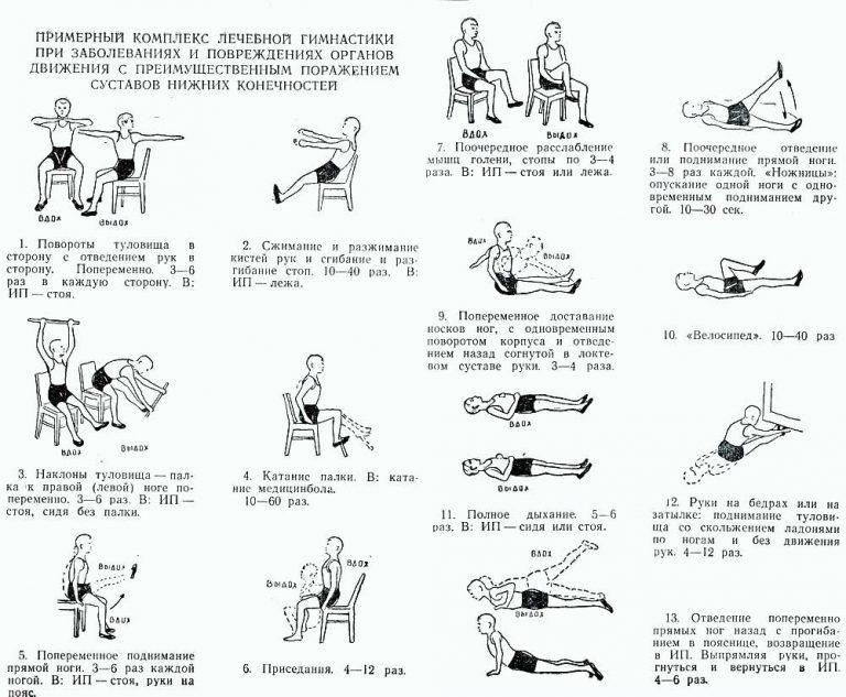 Изображение - Лечение полиартрита суставов ног Lfk