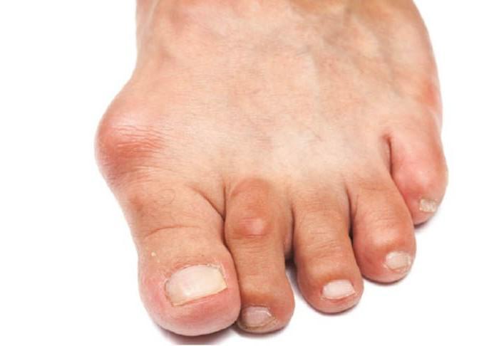 Артрит пальца ноги симптомы и лечение