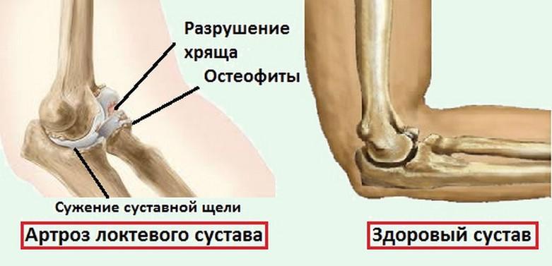 Остеохондроз локтевого сустава народная медицина как разработать суставы и сухожилия таза и сесть в лотос
