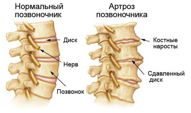 Остеоартроз поясничного отдела позвоночника симптомы