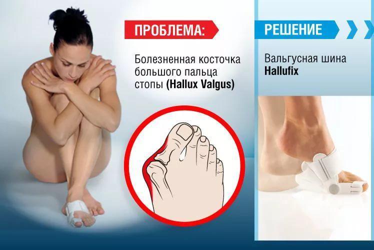 Болезненная косточка большого пальца стопы