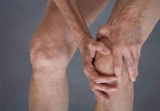 Изображение - Болезни коленного сустава симптомы bolezni-kolennogo-sustava