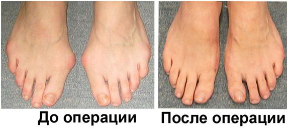 бурсит большого пальца до и после операции