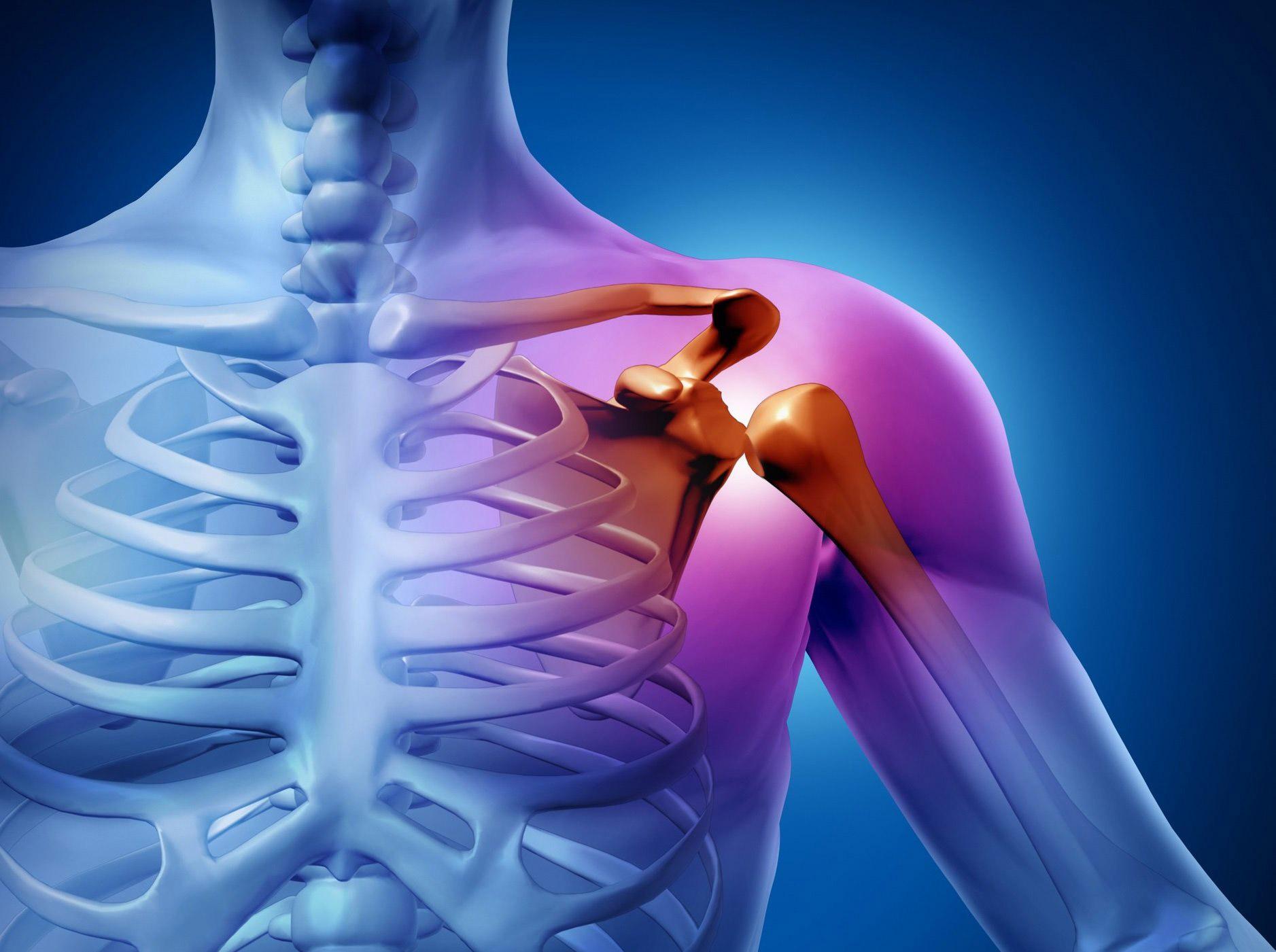 Бурсит плечевого сустава - симптомы и лечение. Субакромиальный и подклювовидный бурсит