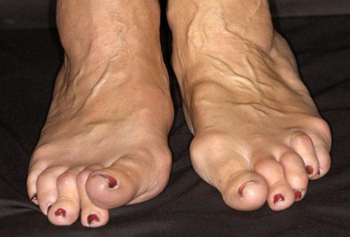Изображение - Лечение полиартрита суставов ног deformacia_sustavov