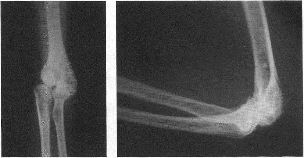 Деформация тканей при артрозе