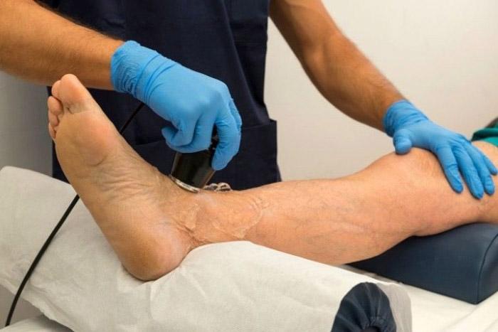 Физиотерапия при псориазном артрите