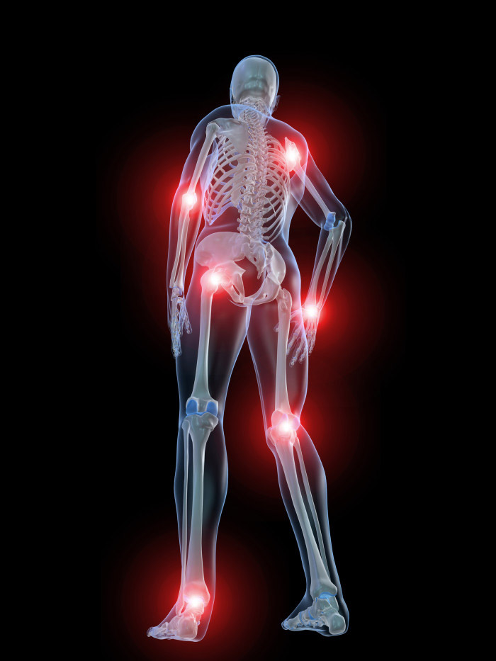 Полиартрит симптоматика причины лечение диагностика