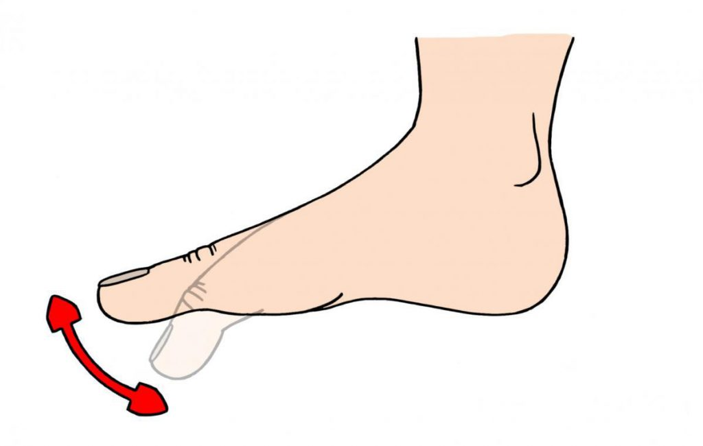Искривление пальцев стопы