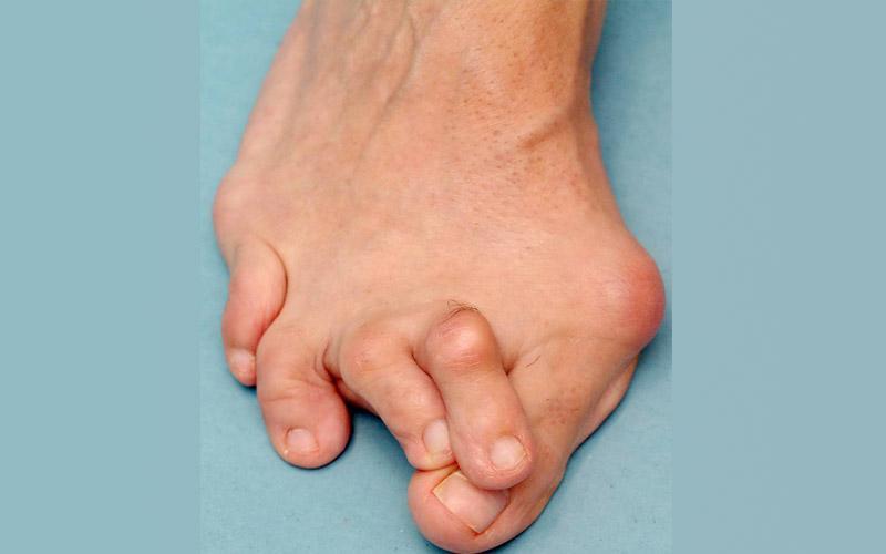 Что такое и как лечить артроз пальцев ног
