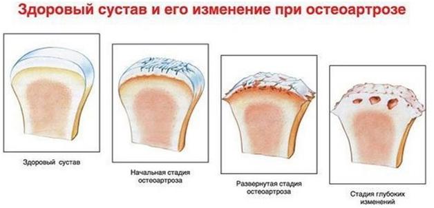 изменения в коленном суставе при остеоартрозе