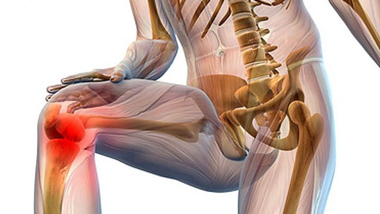 Боль в колене лечение. Как лечить боль коленного сустава в домашних условиях
