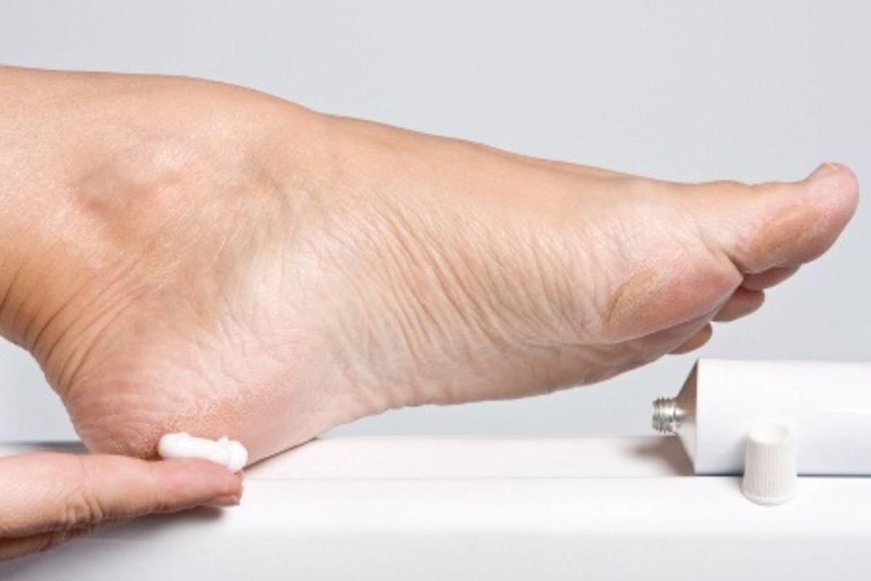 нанесение мази на ноги