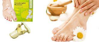 Методы лечения косточки на большом пальце ноги
