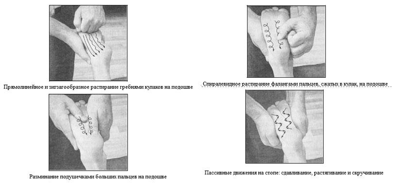 Упражнения для вальгусной стопы