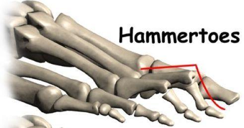 Изображение - Деформация суставов пальцев ног molotkoobraznyj-vid-patologii-palcev