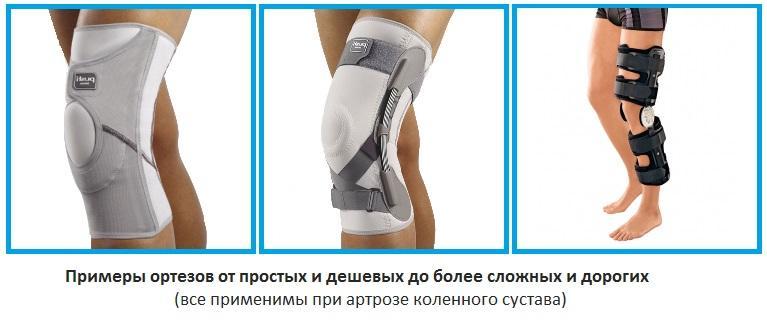 Изображение - Наколенник лечебный на коленный сустав ortopedicheskij-nakolennik-pri-artroze