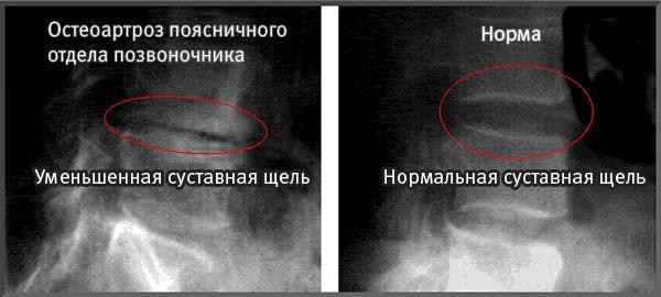 Остеоартроз поясничного отдела