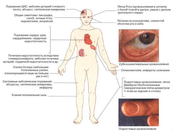 острая ревматическая лихорадка патогенез