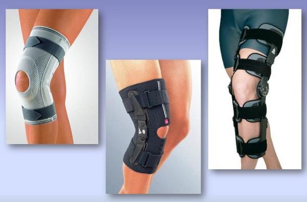 Наколенник при синовите коленного сустава фиксация лучезапястного сустава пластырем