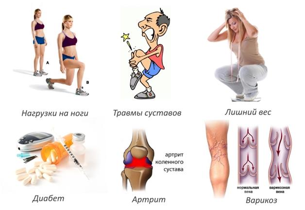 этиология остеоартрита коленного сустава