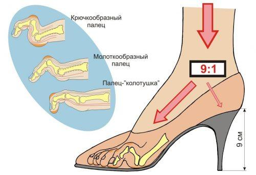 Обувь с узким носком