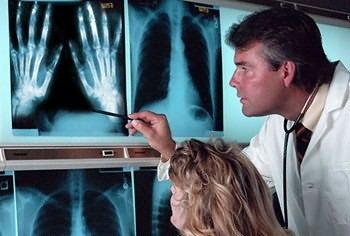 реактивный полиартрит на рентгеновском снимке